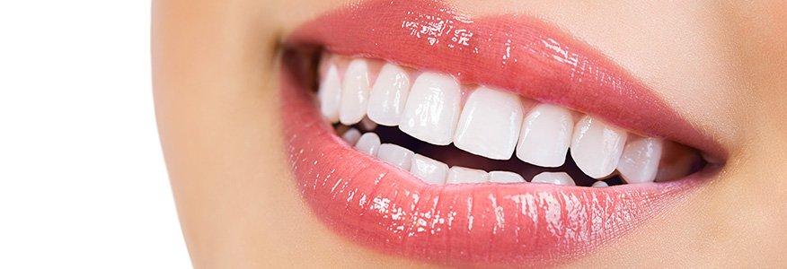 Daha parlak bir gülümseme için diş beyazlatma