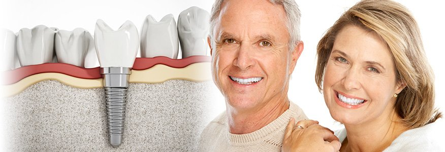 implant-nedir